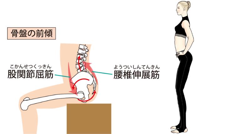 骨盤の前傾タイプ